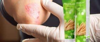 Psorilax Creme zur Behandlung von Psoriasis der Haut