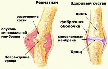 Serebral revmatizm