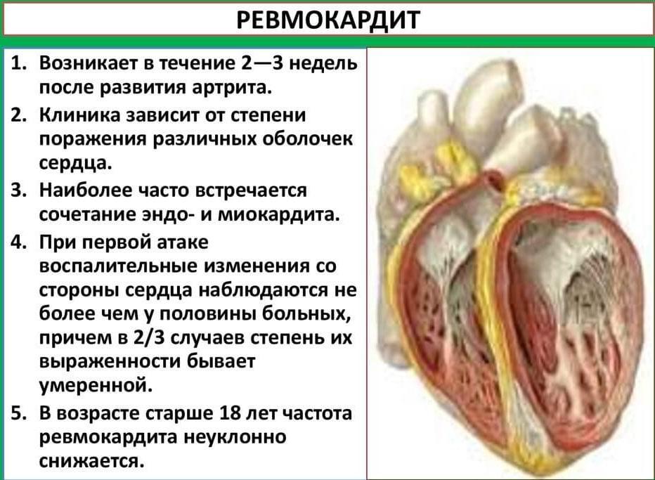 Ревматична болест на сърцето