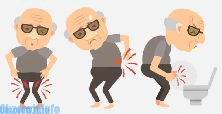 Prostatin za liječenje prostatisa