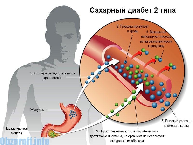 2. tüüpi diabeet