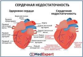 zlyhanie srdca