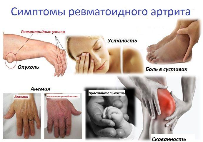 Artritisz tünetei