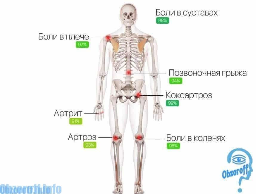 Simptomele bolilor articulare