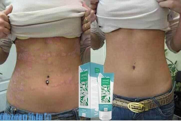 ผลลัพธ์ก่อนและหลังการใช้ครีม Skinovital สำหรับการรักษาโรคสะเก็ดเงิน
