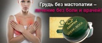 sravnenie2 1 550x256 - 39
