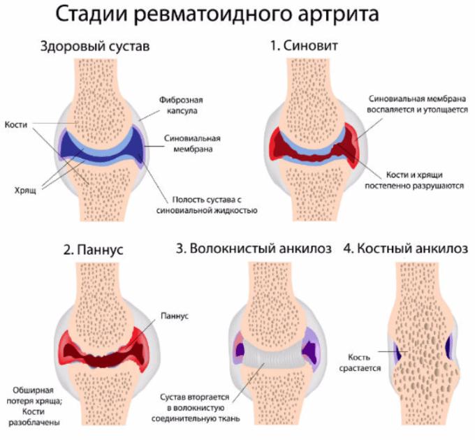 Artritin mərhələləri