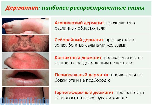 Jenis Dermatitis