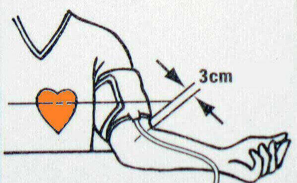 Måling af blodtryk