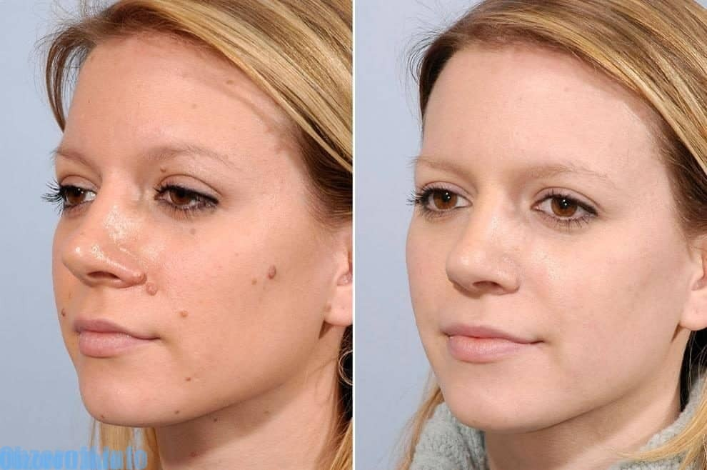 PapiStop Creme para remover verrugas e papilomas