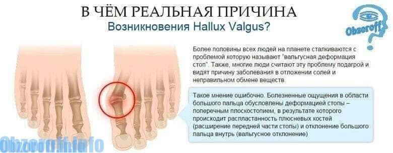 príčiny hallux valgus