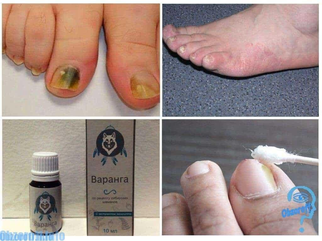 Hiệu quả sử dụng kem Varanga để chữa trị nấm ở chân Варанга