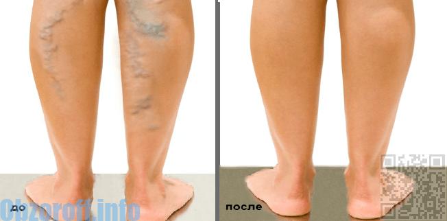 лечение варикоза до и после