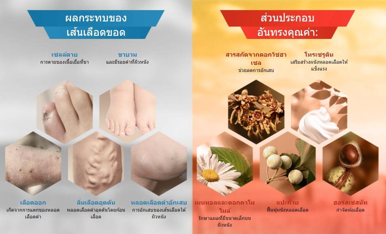 ครีม Varius สำหรับการรักษาเส้นเลือดขอด - ราคาในประเทศไทยรีวิวจากลูกค้า